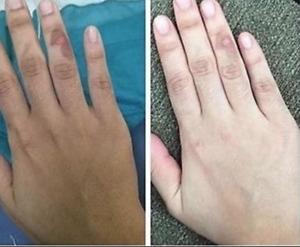 Permanent  Glutathione Skin Whitening