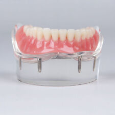 Dental implant restoration model with clear red gingival 4 pcs implants