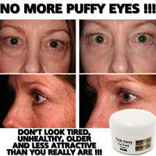 FADE AWAY EYE FADE CREAM LOTION STOPS DARK CIRCLES REMOVES EYE BAGS INSTANT