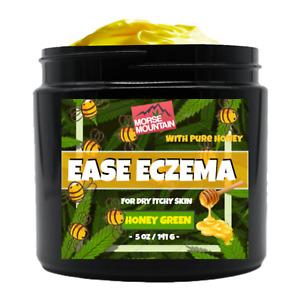 Eczema / Psoriasis Honey Ointment Cream Natural Dermatitis Treatment