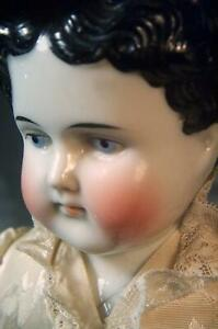 Antique China Head Doll Bright Face Kid Body Fitted Dress Deep Molded Hair Ears!