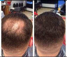 5x Hair illusion Hair Fibers Thickening Fibers 90g Bald Spot Thinning Concealer
