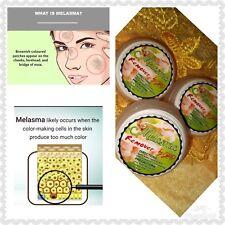 Melasma Remover Cream Freckles Dark Spot Diminish Sun damage Micro Peeling