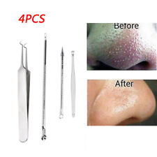 Stainless Blackhead Facial Acne Spot Pimple Remover Ear Extractor Tool Comedone