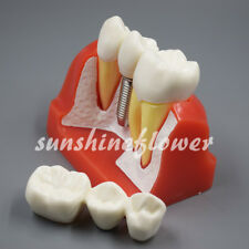 Dental 4 Times Teeth Model Implant Analysis Removable Crown Roots Demonstration