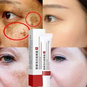 Whitening Freckle Cream Remove Melasma Acne Dark Spots Brighten Pigment Melanin