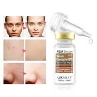 Hyaluronic Acid Hydration Anti Wrinkle Face Ageing Essence Serum Skin UK