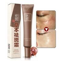 1Pc Whitening Freckle Cream 30g Remove Melasma Acne Spots Melanin Moisturizing