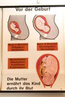 Schulwandkarte Rollkarte Lehrtafel Aufklärung Geburt Schwangerschaft 70s vintage