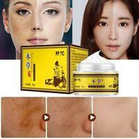 30g Freckle Dark Spot Removal Fade Blemish Melasma Whitening Cream Facial Care
