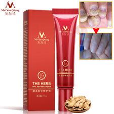 Nail Foot Protector Skin Care Cream Fungus Treatment Herb Nails Repair Cream