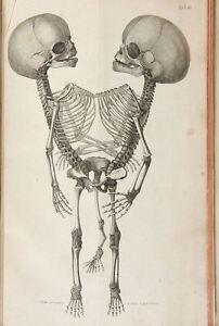 Large Framed Vintage Medical Print - Siamese Twins (Picture Freak Human Anatomy)
