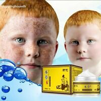 Acnesil Spot Freckle Fade Removal Cream For Face Anti-aging Acne Blemish