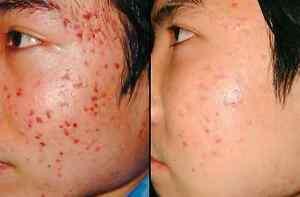 BEST Micro Dermabrasion Scrub, Treats Acne scars, stretch marks & Skin problems