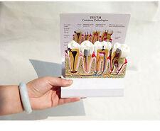 Dental Diseased Teeth and Gums Model-Patient Education Dental Model New