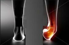 Unbranded Foot Grey Orthotics, Braces & Orthopaedic Sleeves