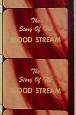 THE STORY OF BLOOD STREAM WITH IRVIN MOON  16MM FILM MOVIE ON REEL Y3