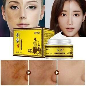 UK Freckle Dark Spot Removal Fade Blemish Melasma Whitening Cream Facial Care