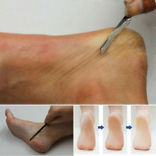 Keep your feet fresh Stainless steel tool to remove death skin pedicure U87