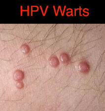 HPV Genital Warts Ointment 4 oz 118 mL with Green Tea Extract
