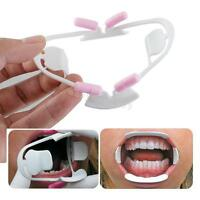Oral Dental Mouth Opener Intraoral Cheek Lip Retractor Prop Orthodontic Adult CE