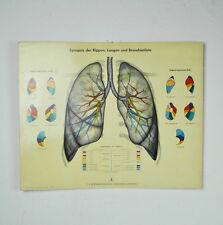 alte Lehrtafel: Synopsis der Rippen, Lungen und Bronchialäste - Boehringer Sohn