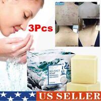 Sea Salt Soap Remove Mites Cleaner Removal Pimple Pores Acne Goat Milk 100g NEW
