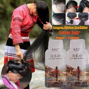 Rice Hair Growth Shampoo Anti Hair Loss Treatment Serum Fast Growth Longer thick