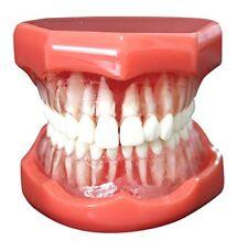 Dental Study Teaching Model Standard Model Removable Teeth Soft Gum Adult Model