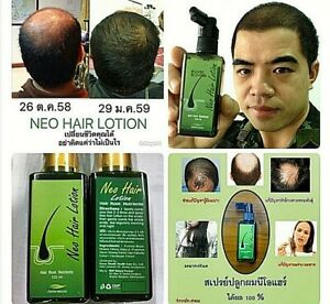 120x2 Neo Hair Lotion Nutrients Root HAIR BEARD SIDEBURNS LONGER Original Herbs
