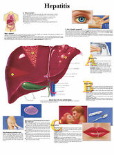 A3 Medical Poster – Hepatitis (Text Book Anatomy Pathology Doctor Nurse Disease)