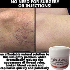 VEIN AWAY CREAM LOTION INSTANT RESULTS STOP THREAD SPIDER VEIN VARICOSE VEIN