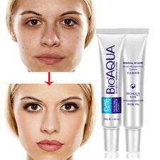 Effective Face Skin Care Acne Spots Scar Blemish Removal Cream Marks Treatment