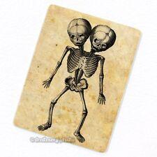 Siamese Twins Deco Magnet, Decorative Fridge Antique Medical Illustration Oddity