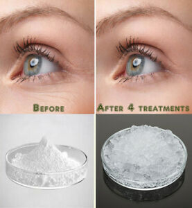 Pure Hyaluronic Acid Powder Sodium Hyaluronate for AntiAging Wrinkle Joint Serum