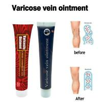 Varicose Veins Treatment Effective Cream cure Vasculitis Phlebitis Spider Veins