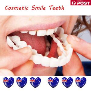 Snap On Teeth Cosmetic Secure Smile Instant Natural Upper Veneers Dental Fals DM