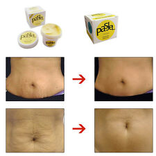 PASJEL Precious Skin Body Cream for Eliminating Stretch Mark Pregnancy Scar