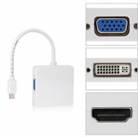 3 in 1 Mini Displayport to HDMI DVI DP Thunderbolt Adapter Cable for MacBook RF