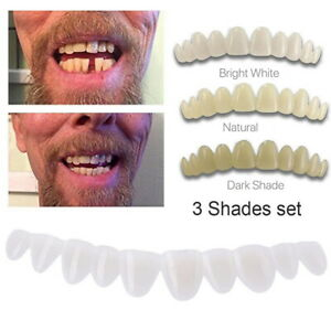 Smile Temporary Tooth Kit Deluxe 3 Shades of Temporary Teeth Bead Replacement