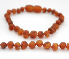 BALTIC AMBER BRACELET / ANKLET, DARK COGNAC UNPOLISHED BEADS, SCREW CLASP, 16 CM