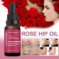 10ml Certified Organic Rosehip Oil 20ml Rosa Canina Seed Oil G0X0