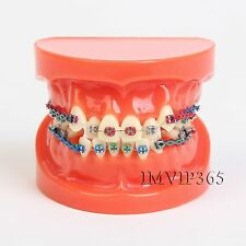 Dental Orthodontics Malocclusion Braces Teeth Model + Brackets Elastolink Chain