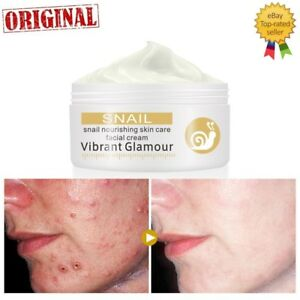 Snail Repair Face Cream Remove Wrinkles Acne Whitening Pigment Spots Brightening