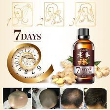 Hair Growth Essential Oil Loss Natural Regrowth Serum Treatment Ginger liquid