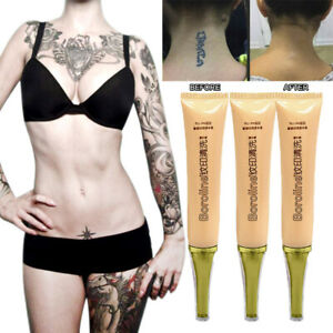 Permanent Tattoo Removal Cream No Need For Pain Removal Maximum Strength 13g