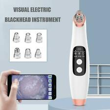Electronic LCD Blackhead Remover Vacuum Suction Acne with Cleaner Sucker Q9K4