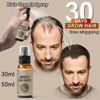 30ml/50ml  Hair Growth Spray Extract Prevent Hair Loss Growing Hair For Men ~!~