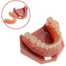 Dental Study Teaching Model Teeth Implant Repair Model # 6007 Denture 2 Nails