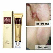 Cremas Para Borrar Cicatrices Crema Eliminar Cicatrises Pomada Cicatrizes